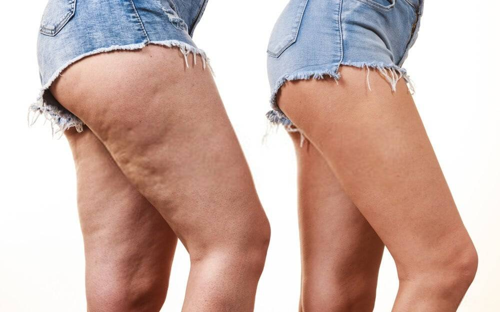 Combattere la cellulite con il tapis roulant, correre e camminare